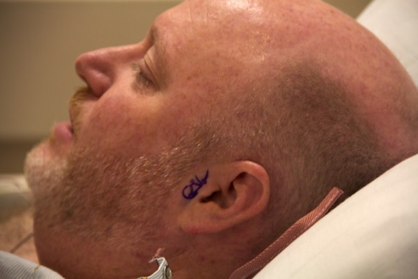 Left Ear Surgery Dr. Gianoli's signature on Todd's left ear Nov 2013 IMG_3538
